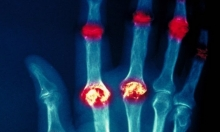 كيف تساعد السوائل مرضى التهاب المفاصل؟