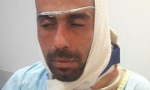 اعتداء على شاب عربي بعد عملية بيتح تكفا