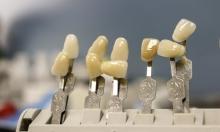 """تقنية حديثة لزراعة الأسنان """"تختصر"""" زمن الشفاء"""