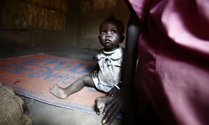 بعد المجاعة... الكوليرا تجتاح الصومال