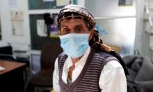 115 ضحية للكوليرا في اليمن