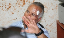 الاعتداء على مساعد رئيس مجلس محلي البعنة