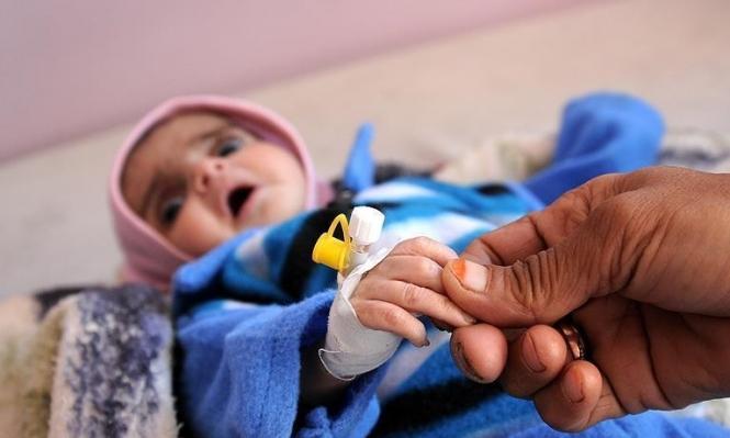 اليمن: ارتفاع حالات الوفاة بالكوليرا إلى 859