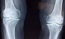 جراحات الركبة بالروبوت: إجراءات سريعة ونتائج أفضل