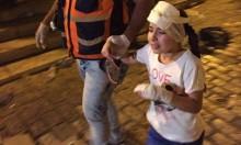 إصابات بعد اعتداء قوات الاحتلال على المصلين في باب الأسباط