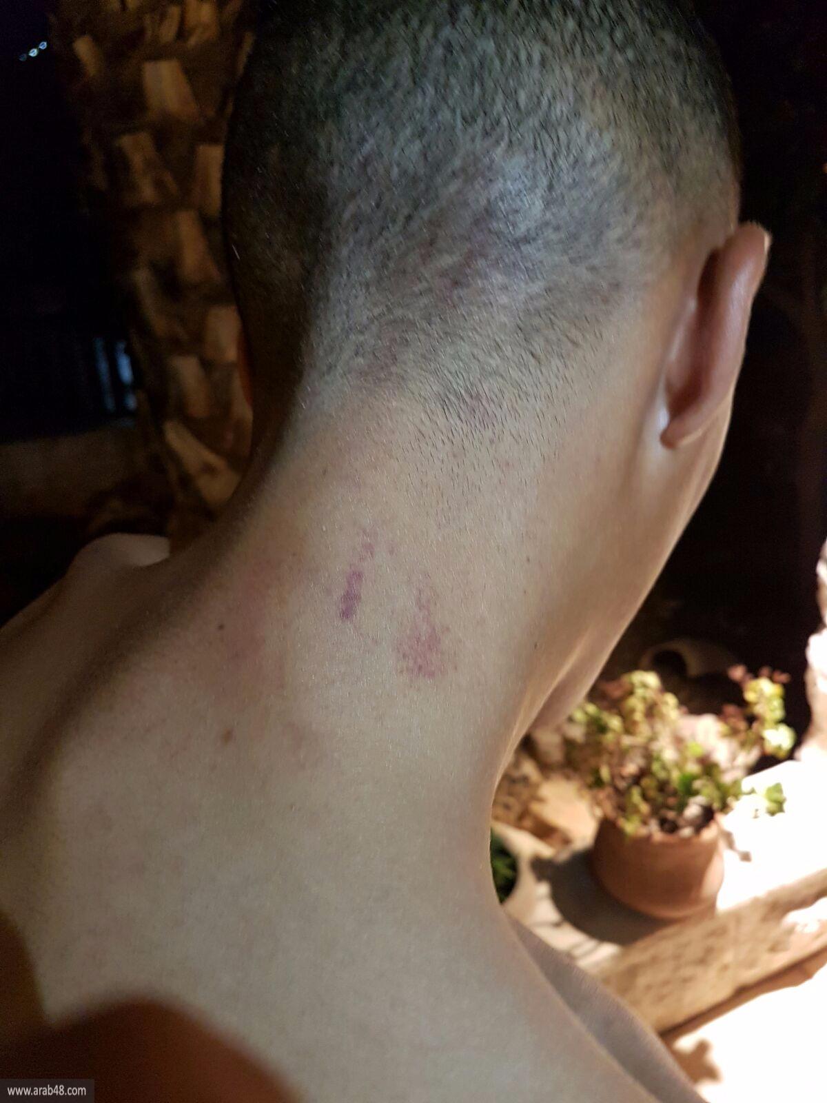 شاب من أم الفحم: الشرطة اعتدت علي في القدس