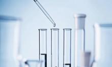 طريقة جديدة لقياس الكولسترول بدون الصوم