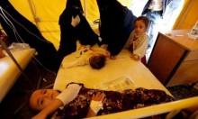 150 ألف طفل أصيبوا بالكوليرا في اليمن