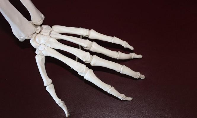 مرضى التهاب المفاصل أكثر عرضة للإصابة بالانسداد الرئوي