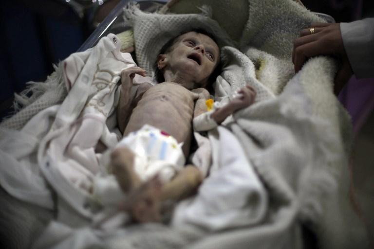 الجوع يأكل الحياة: أثر الحصار على أطفال الغوطة