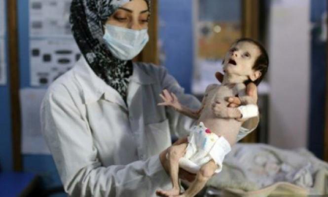 سورية: 1100 طفل يعانون سوء تغذية حاد في الغوطة الشرقية المحاصرة