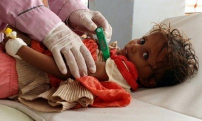 اليمن السعيد: ارتفاع ضحايا الكوليرا إلى 2180
