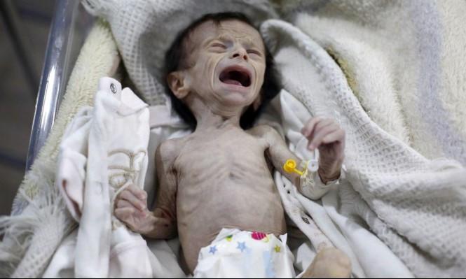 الوضع الإنساني في غوطة دمشق المحاصرة صادم