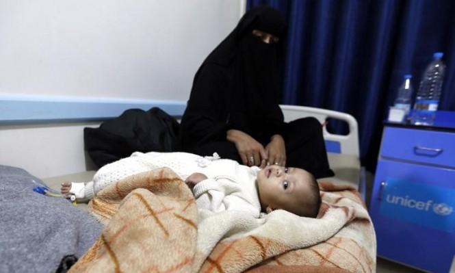 """مرض """"الديفتيريا"""": سبب جديد للموت في اليمن"""