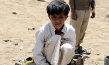 اليمن: سوء التغذية يهدد 400 ألف طفل بالموت