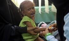 """الأمم المتحدة: """"التحالف العربي"""" يمنع الإغاثة الإنسانية عن اليمن"""