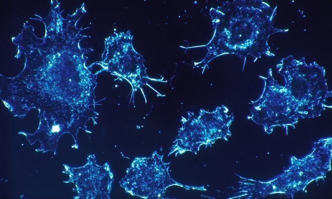 """عقار يستخدم لسرطان الرئة قد يساعد في القضاء على """"الإيدز"""""""