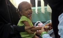 الكوليرا قد تعاود الانتشار في اليمن بسبب نقص المساعدات