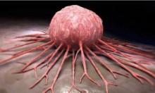 جهاز جديد للكشف عن السرطان في مراحله الأولى