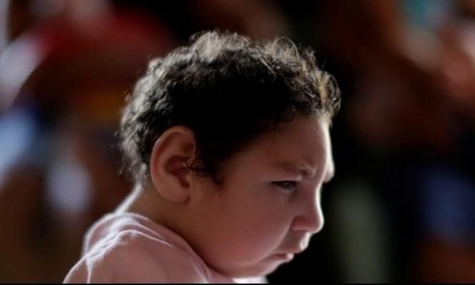أميركا: زيادة في عدد المواليد بعيوب خلقية بسبب فيروس زيكا