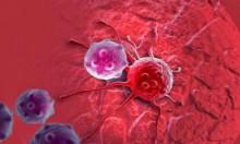 دراسة: أمراض اللثة تزيد فرص الإصابة بالسرطان