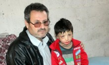 محمود... طفل سوري أحرقته براميل النظام وينتظر العلاج