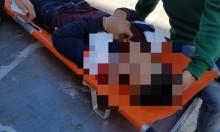 القدس: مستوطنون يعتدون بوحشية على شاب فلسطيني