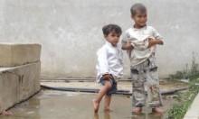 ارتفاع عدد ضحايا مرض الخُناق في اليمن