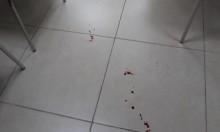 الطيبة: إصابة متوسطة لشاب بإطلاق نار