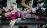 مقتل 37 مدنيا حرقا بقصف روسي بالنابالم على الغوطة