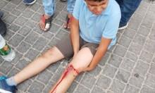 إصابة طفلين دهسهما مستوطن شرق قلقيلية