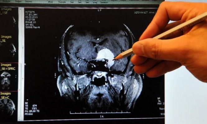 تطوير تقنية فعّالة وأقل تكلفة لقياس تدفق الدم في الدماغ