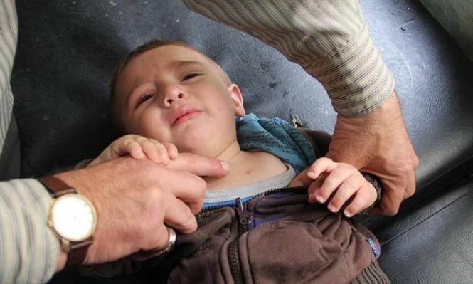 """""""دُمّل الشرق"""" مرض يُهدِّد سكان إدلب السورية"""