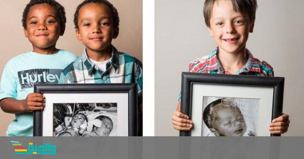 الأطفال الخدج والأمل الكبير | والدية | عرب 48