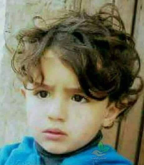مخيم شعفاط: وفاة طفل هاجمه كلب قبل 10 أيام