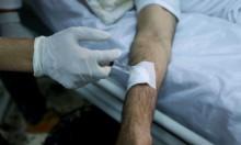 ليبيا: علاج السرطان يعتمد على تبرعات المانحين فقط