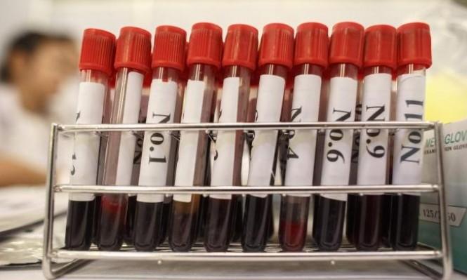دراسة: اختبار دم يكشف عن النوبات القلبية بشكل فوري
