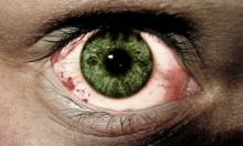 تطوير تقنية تُشخص حالة العيون أفضل من الأطباء الأكثر خبرة