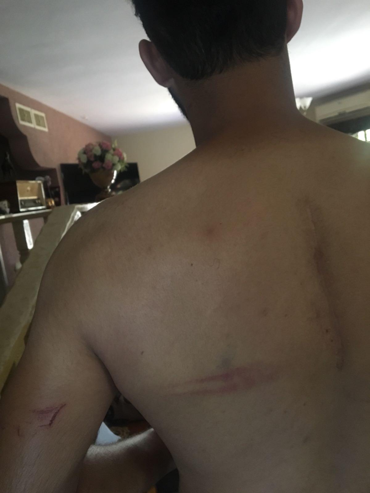 المحكمة تحيل أحد المشتبهين بالاعتداء على شبان شفاعمريين للحبس المنزلي