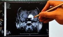 السكتة الدماغية تزيد من خطر الإصابة بالخرف