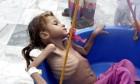 8 ملاييين يمني لا يعرفون متى سيتناولون وجبتهم الغذائية التالية