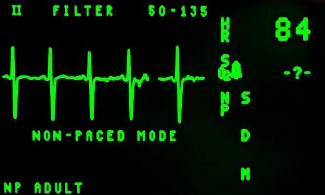 هل يمكن للتكنولوجيا التنبؤ بالنوبة القلبية قبل حدوثها؟