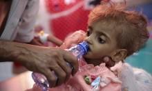 أكثرُ من مليونيّ طفل يمني يُعانون سوءَ التغذية الحاد
