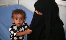 اليمن على مشارف أكبر مجاعة في العالم