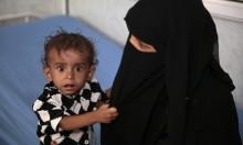 الأمم المتحدة: 14 مليون يمني على شفا المجاعة