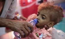"""""""الدفتيريا"""": وباء يفتك باليمنيين في صنعاء"""