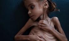 اليمنية أمل حسين: ضحية الجوع والمرض والحرب