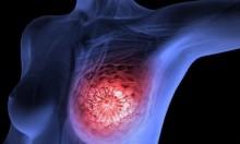 تصوير الأشعة المنتظم للثدي يقلل خطر السرطان بـ60%