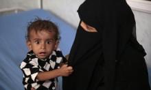 18 مليون يمنيّ مُعرّضون للمجاعة