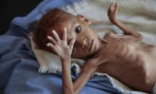 منظمة إنسانية: 85 ألف طفل يمني توفوا بسبب الجوع